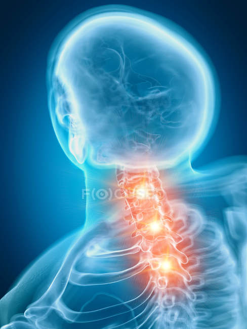 Illustration of painful cervical spine in human skeleton part. — Stock Photo