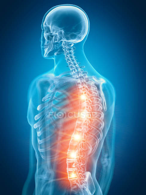 Illustration of painful back in human skeleton part. — Stock Photo