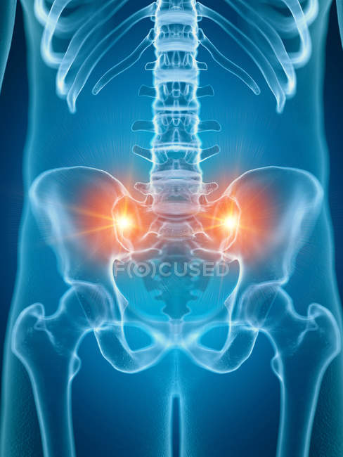 Illustration of painful sacrum joints in human skeleton part. — Stock Photo