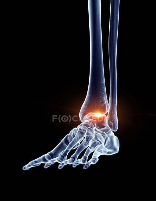Ilustración del tobillo doloroso en la parte del esqueleto humano . - foto de stock
