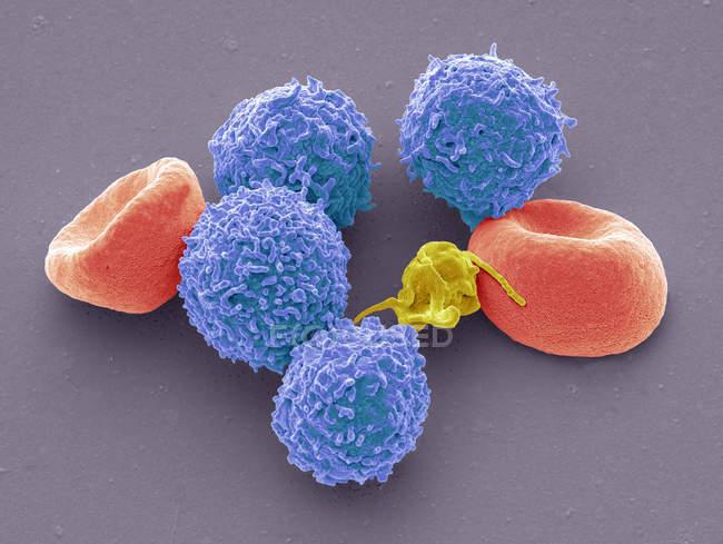 Micrógrafo electrónico de barrido coloreado de eritrocitos de glóbulos rojos humanos, leucocitos de glóbulos blancos y trombocitos plaquetarios . - foto de stock