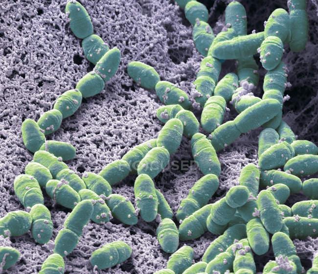 Micrografo elettronico a scansione colorata di batteri anaerobici Streptococcus mutans nella normale flora batterica della bocca . — Foto stock