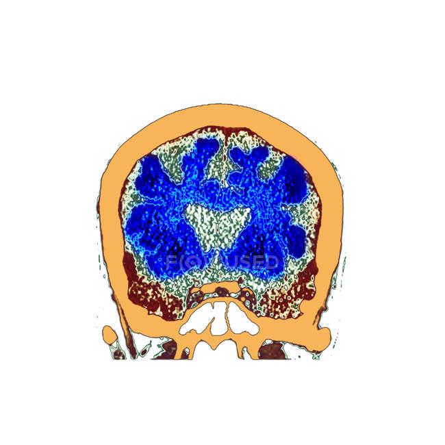 Esplorazione di tomografia computata colorata della sezione attraverso il cervello del paziente maschio senior con demenza. — Foto stock