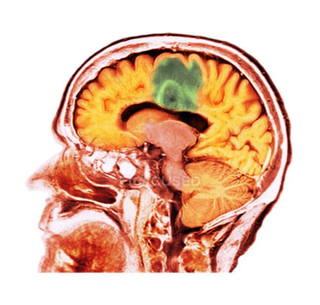 Esplorazione di tomografia computata colorata della sezione del cervello del paziente femminile senior con glioblastoma tumore al cervello. — Foto stock