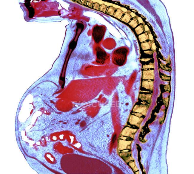 Radiografía coloreada de la sección a través de la columna torácica del paciente varón mayor con espondilitis anquilosante con degeneración severa de la columna torácica inferior . - foto de stock