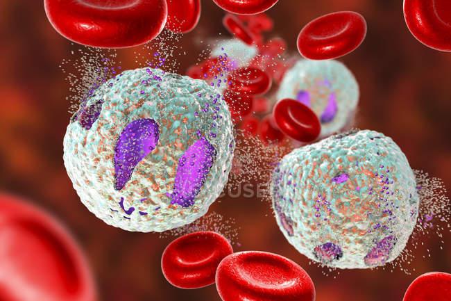 Ilustración digital que muestra destrucción de linfocitos, concepto de tratamiento de la leucemia linfoblástica aguda . - foto de stock