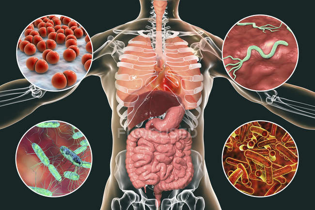 Digitale Illustration mit Bakterien, die Infektionen der Atemwege und des Verdauungssystems verursachen, Streptococcus pneumoniae, Helicobacter pylori, Salmonellen, Shigellen. — Stockfoto