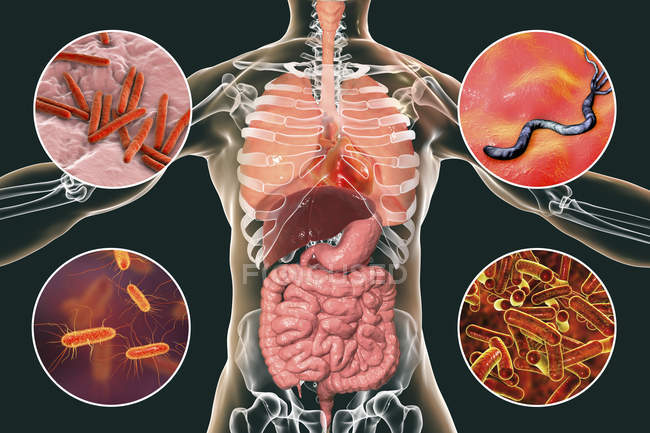 Digital illustration showing bacteria causing infections of respiratory and digestive system, Mycobacterium tuberculosis, Helicobacter pylori, Escherichia coli, Shigella. — Stock Photo