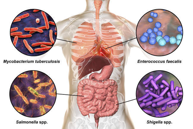 Digital illustration showing bacteria causing infections of respiratory system, heart and digestive tract, Mycobacterium tuberculosis, Enterococcus faecalis, Salmonella, Shigella. — Stock Photo