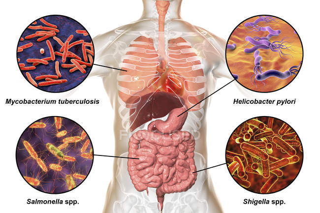 Digital labelled illustration showing bacteria causing infections of respiratory and digestive system, Mycobacterium tuberculosis, Helicobacter pylori, Salmonella, Shigella. — Stock Photo