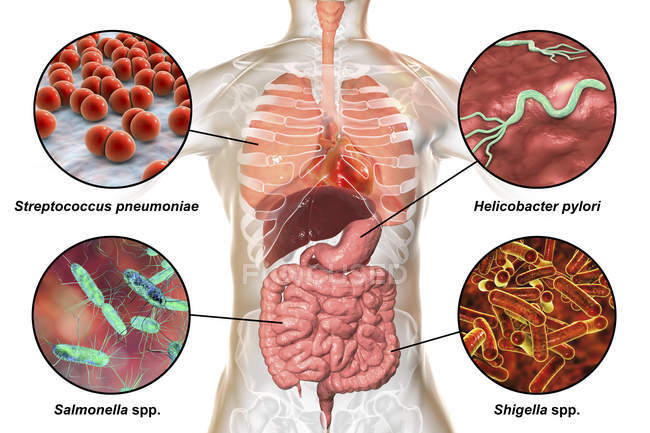Digital labelled illustration showing bacteria causing infections of respiratory and digestive system, Streptococcus pneumoniae, Helicobacter pylori, Salmonella, Shigella. — Stock Photo