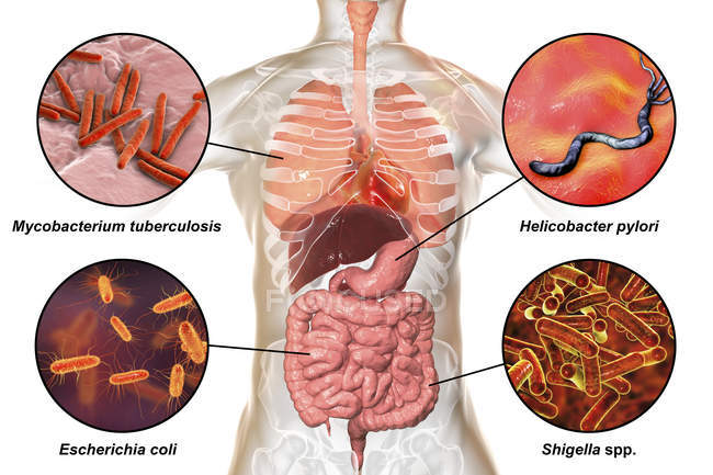 Digital labelled illustration showing bacteria causing infections of respiratory and digestive system, Mycobacterium tuberculosis, Helicobacter pylori, Escherichia coli, Shigella. — Stock Photo