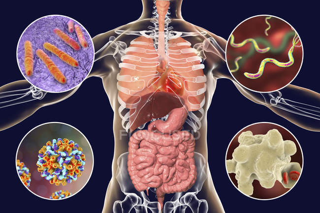 Digital illustration showing bacteria causing infections of respiratory and digestive system, Mycobacterium tuberculosis, Helicobacter pylori, Hepatitis B, Entamoeba histolytica. — Stock Photo