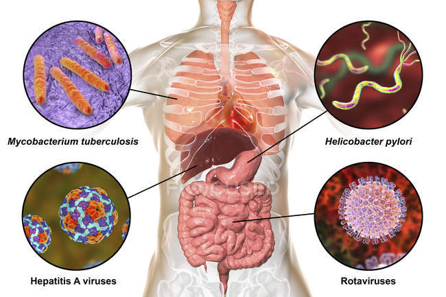 Digital labelled illustration showing bacteria causing infections of respiratory and digestive system, Mycobacterium tuberculosis, Helicobacter pylori, Hepatitis A, Rotaviruses. — Stock Photo