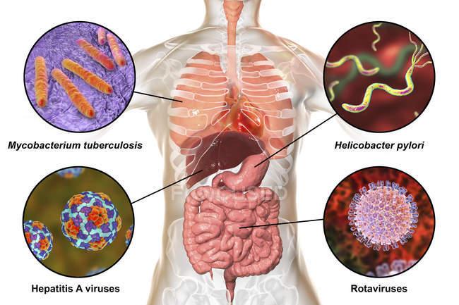 Digital etichettati illustrazione visualizzando i batteri che causano infezioni del sistema respiratorio e digestivo, Mycobacterium tuberculosis, Helicobacter pylori, l'epatite A, rotavirus — Foto stock