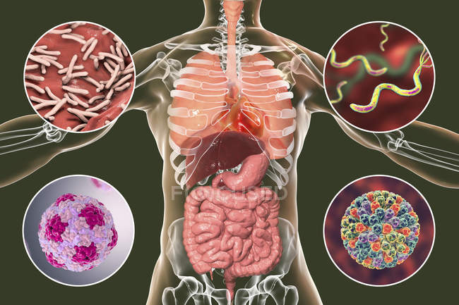 Digital illustration showing bacteria causing infections of respiratory and digestive system, Mycobacterium tuberculosis, Helicobacter pylori, Hepatitis A, Rotaviruses. — Stock Photo