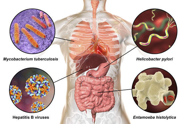 Digital labelled illustration showing bacteria causing infections of respiratory and digestive system, Mycobacterium tuberculosis, Helicobacter pylori, Hepatitis B viruses, Entamoeba histolytica. — Stock Photo