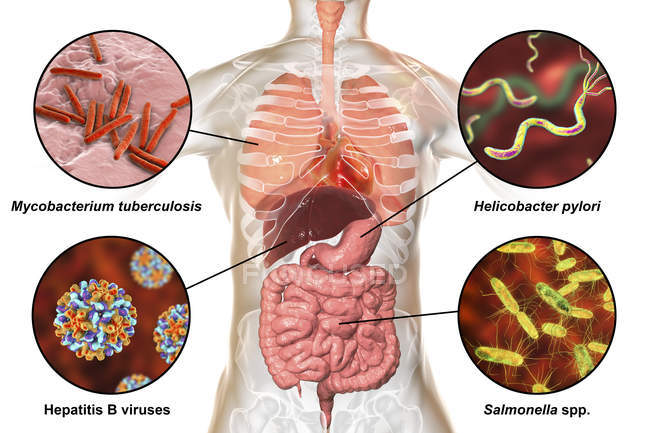 Digital labelled illustration showing bacteria causing infections of respiratory and digestive system, Mycobacterium tuberculosis, Helicobacter pylori, Hepatitis B, Salmonella. — Stock Photo