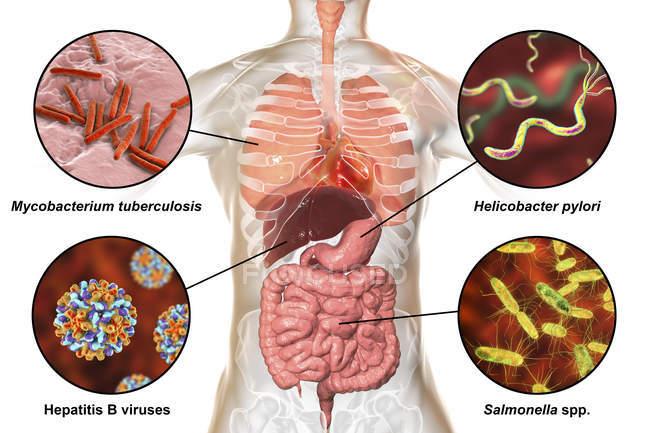Illustration numérique étiquetée montrant des bactéries causant des infections du système respiratoire et digestif, Mycobacterium tuberculosis, Helicobacter pylori, Hépatite B, Salmonella . — Photo de stock