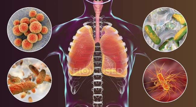 Digital illustration showing bacteria causing nosocomial pneumonia, Staphylococcus aureus, Pseudomonas aeruginosa, Klebsiella pneumoniae, Escherichia coli. — Stock Photo