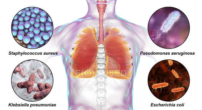 Digital labelled illustration showing bacteria causing nosocomial pneumonia, Staphylococcus aureus, Pseudomonas aeruginosa, Klebsiella pneumoniae, Escherichia coli. — Stock Photo