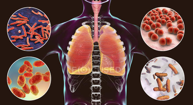 Digital illustration showing bacteria causing lung infections, Mycobacterium tuberculosis, Streptococcus pneumoniae, Haemophilus influenzae, Pseudomonas aeruginosa. — Stock Photo