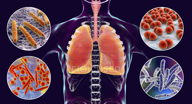 Digital illustration showing bacteria causing lung infections, Mycobacterium tuberculosis, Streptococcus pneumoniae, Mycoplasma pneumoniae, Legionella pneumophila. — Stock Photo