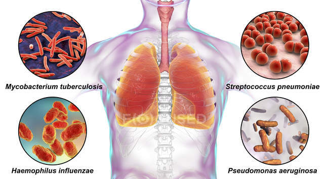 Digital labelled illustration showing bacteria causing lung infections, Mycobacterium tuberculosis, Streptococcus pneumoniae, Haemophilus influenzae, Pseudomonas aeruginosa. — Stock Photo