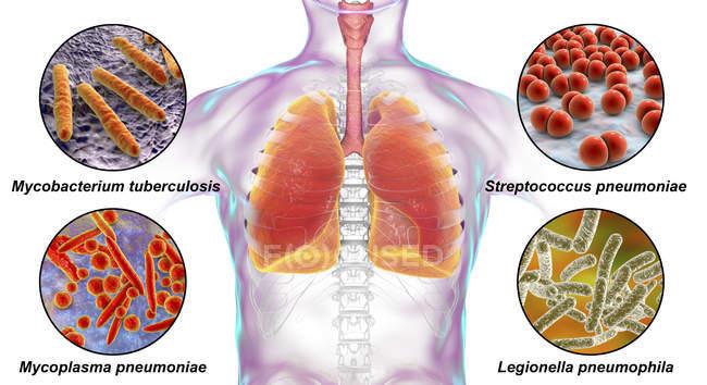 Ilustração digital marcada mostrando bactérias causadoras de infecções pulmonares, Mycobacterium tuberculosis, Streptococcus pneumoniae, Mycoplasma pneumoniae, Legionella pneumophila . — Fotografia de Stock