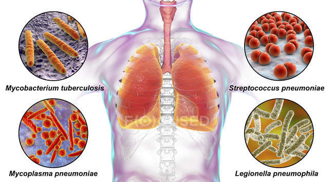 Illustrazione digitale marcata che mostra batteri che causano infezioni polmonari, Mycobacterium tuberculosis, Streptococcus pneumoniae, Mycoplasma pneumoniae, Legionella pneumophila . — Foto stock