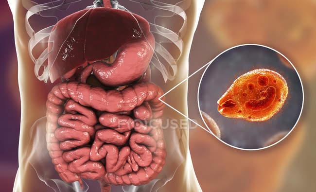 Primer plano que muestra la ilustración digital de ciliado protozoo Balantidium coli parásito intestinal causando balantidiasis úlcera en el tracto intestinal humano. - foto de stock