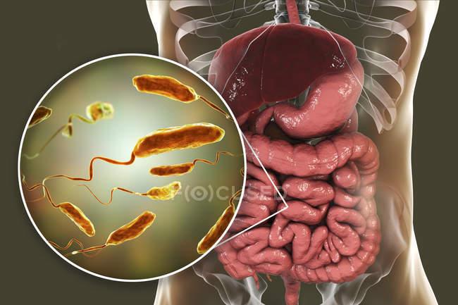 Ilustración digital que muestra el primer plano de las bacterias de la infección por cólera en el intestino delgado . — Stock Photo