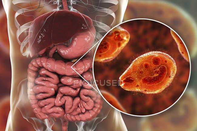 Digitale Illustration zeigt die Nahaufnahme eines ziliaten Protozoen-Balantidium-Coli-Darmparasiten, der Balantidiasis-Geschwüre im menschlichen Darmtrakt verursacht. — Stockfoto