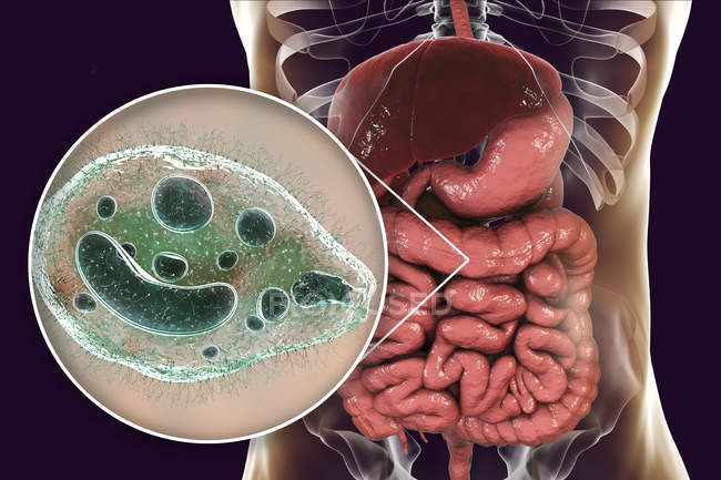 Ilustración digital que muestra el primer plano del protozoario ciliado Balantidium coli parásito intestinal que causa úlcera por balantidiasis en el tracto intestinal humano . - foto de stock