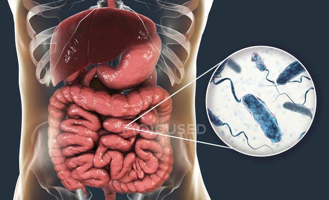 Ilustración digital que muestra el primer plano de las bacterias de la infección por cólera en el intestino delgado . - foto de stock