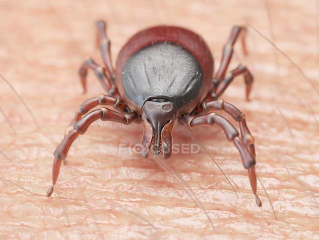 Ілюстрація галочку паразита обходу на поверхні шкіри людини. — стокове фото