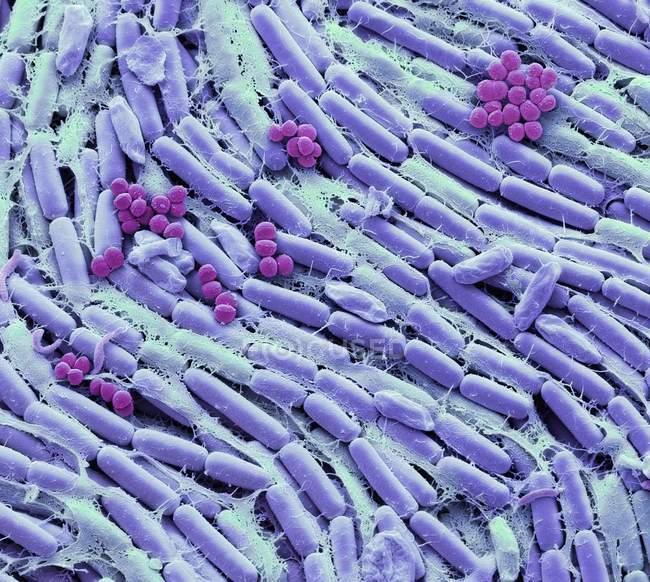 Micrógrafo electrónico de barrido coloreado de bacterias del cultivo de leche materna . - foto de stock
