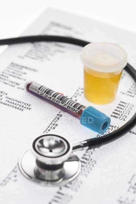 Medical check-up including blood and urine test samples and results. — Stock Photo