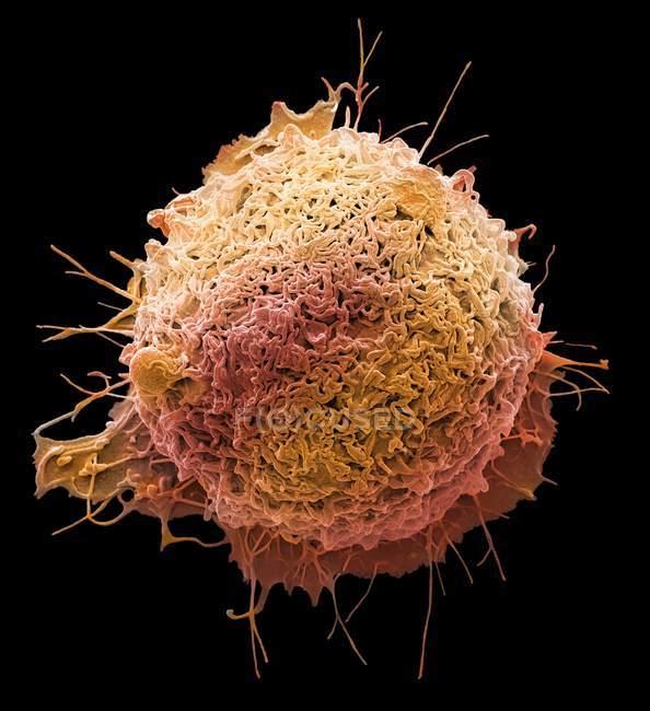 Кольорові мікрофотографія ракових клітин з людського товстої кишки. — стокове фото
