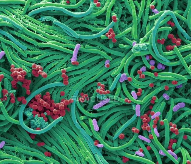 Coloured scanning electron micrograph of bacteria cultured from mobile phone surface. — Stock Photo