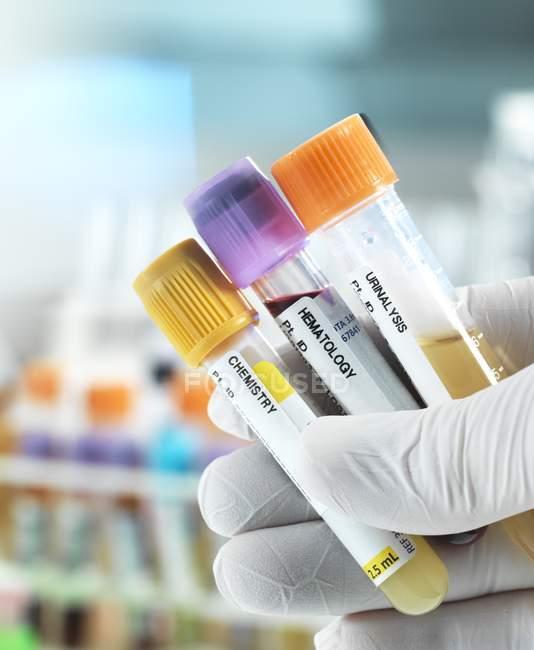 Tecnico che tiene campioni di sangue, urina e chimica per test clinici in mano guantata . — Foto stock
