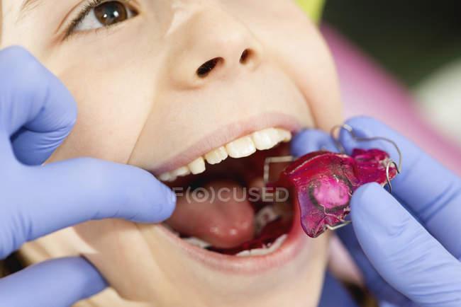 Mani del dentista che applicano apparecchi dentali per la bambina . — Foto stock