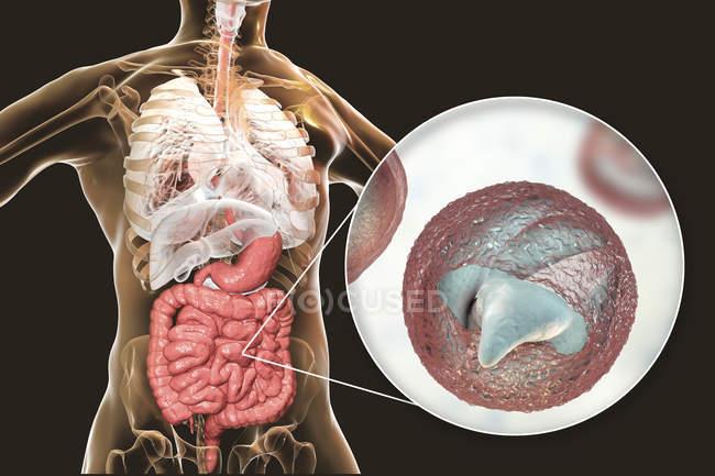 Criptosporidium parvum parásito en el cuerpo humano que causa criptosporidiosis, ilustración digital . - foto de stock