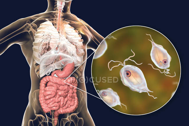 Pentatrichomonas hominis protozoans in human large intestine, digital illustration. — Stock Photo