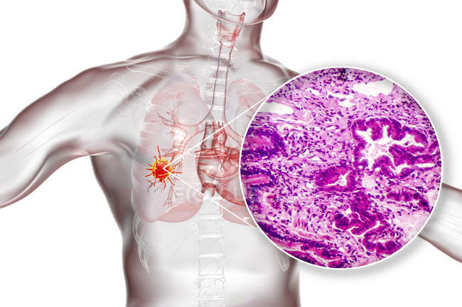 Lung cancer, digital illustration and light micrograph showing lung adenocarcinoma. — Stock Photo