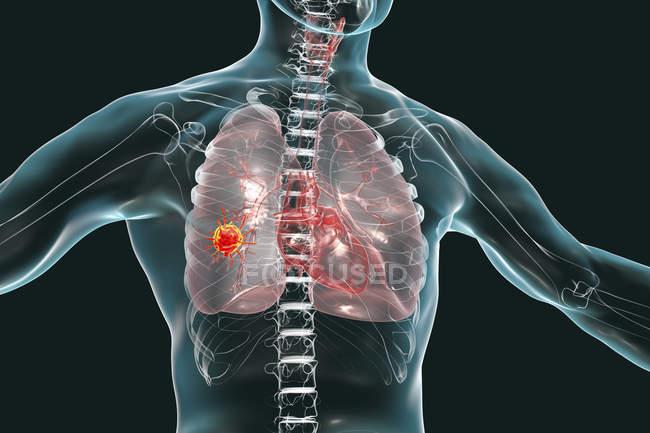 Рак легенів, цифрова ілюстрація, що показує злоякісну пухлина в легенях. — стокове фото