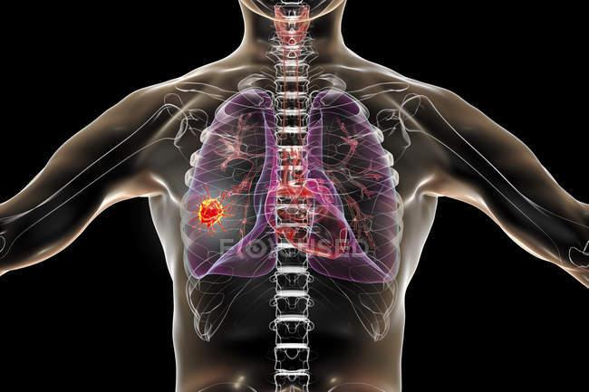 Cancro do pulmão, ilustração digital mostrando tumor maligno no pulmão . — Fotografia de Stock