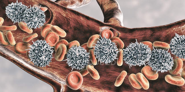 Digital illustration of abnormal white blood cells B-lymphocytes while hairy cell leukaemia. — Stock Photo