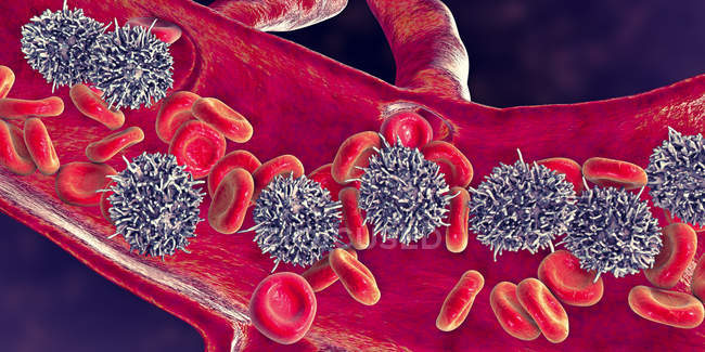 Цифровая иллюстрация аномальных белых кровяных телец B-лимфоцитов при волосатом клеточном лейкемии . — стоковое фото