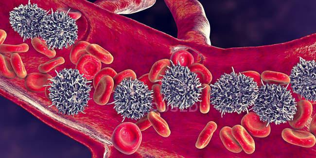 Digitale Illustration abnormaler weißer Blutkörperchen b-Lymphozyten bei Leukämie behaarter Zellen. — Stockfoto